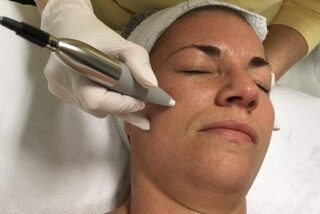 Microneedling/Microdermabration
